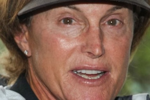 Bruce Jenner had Laser Hair removal on his face… and more!