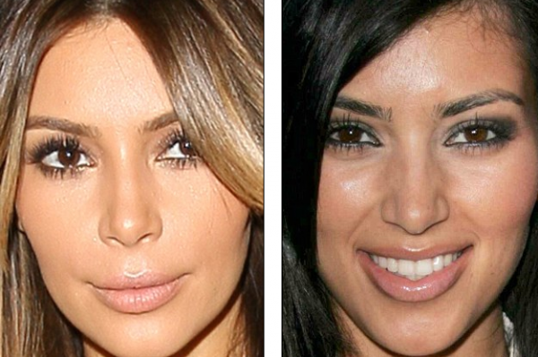 What has Kim Kardashian done to her face?