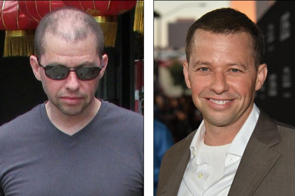 Jon Cryer Reveals His Hair Is A Fake, 'It's An Elaborate Illusion'